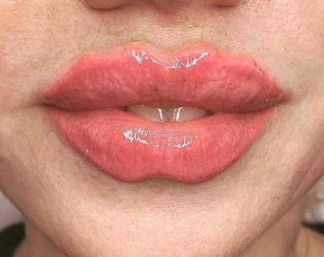 От «уточки» к «дьяволу»: Instagram предлагает новый вид преображения губ